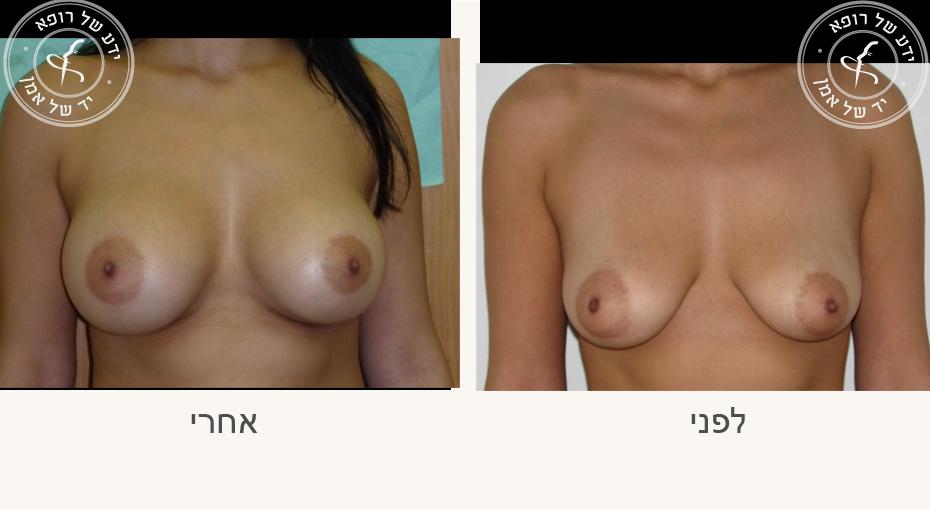 עיצוב חזה לפני ואחרי