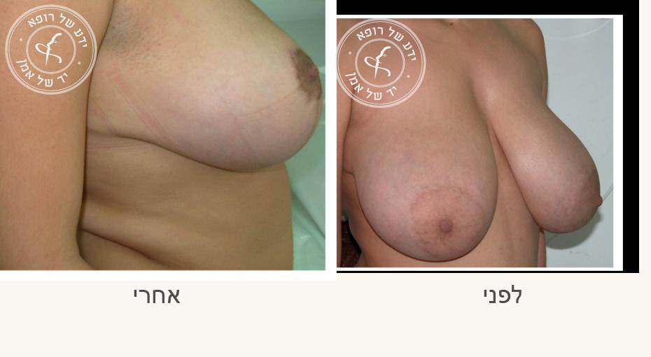 הקטנת חזה לפני ואחרי
