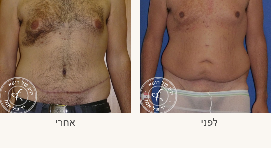 ניתוח מתיחת בטן לגבר