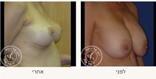 לפני ואחרי החלפת שתלי הסיליקון