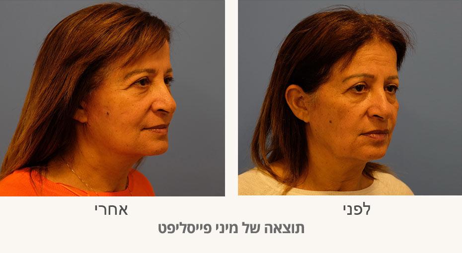 מיני פייסליפט לפני ואחרי