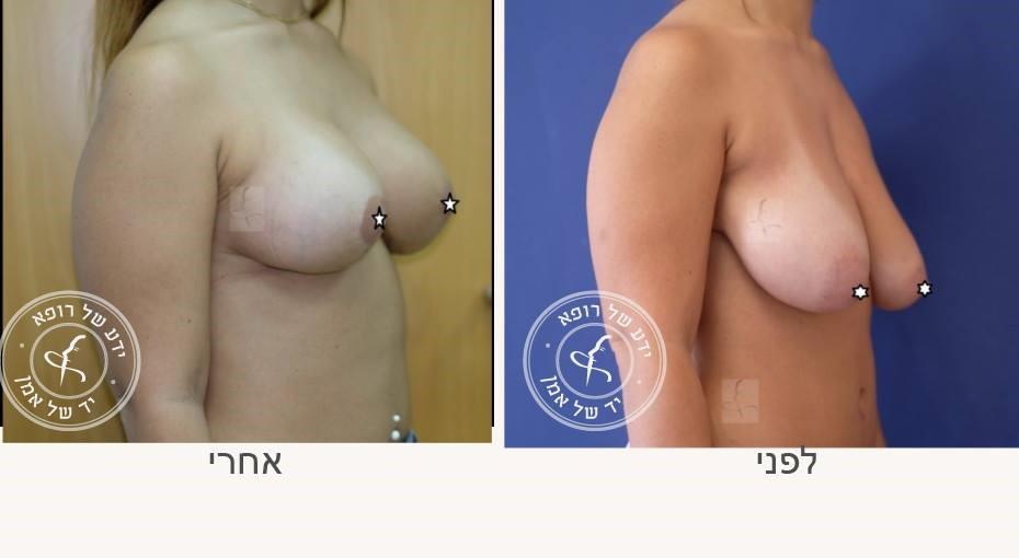 הרמת חזה לפני ואחרי