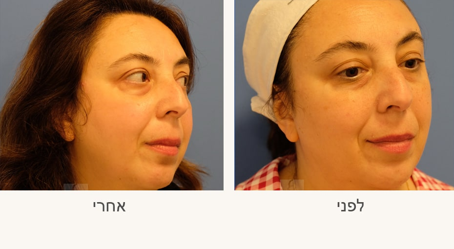 טיפול פילינג לפני ואחרי