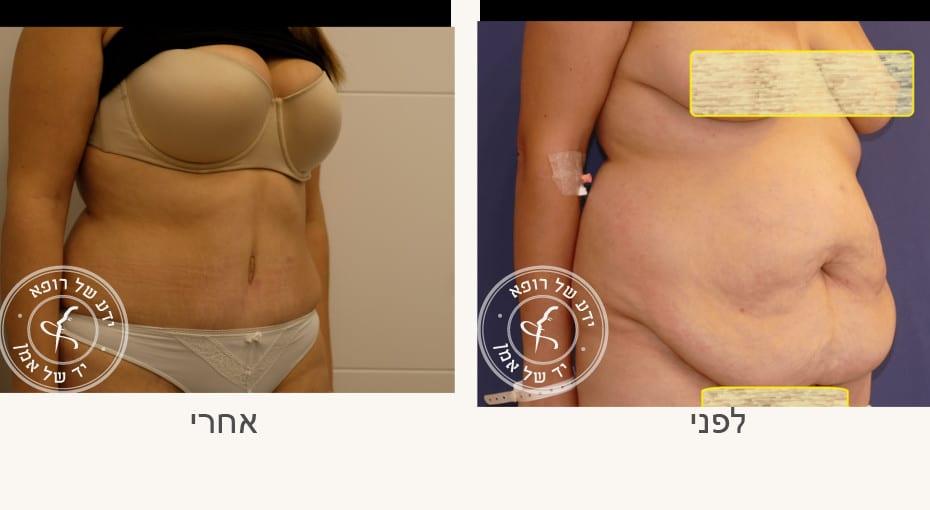 ניתוח שאיבת שומן ומתיחת בטן